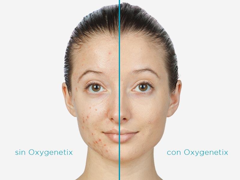 oxygenetix-maquillaje-calidad-antes-despues
