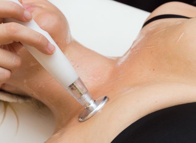 jet-plasma-tratamiento-versatil