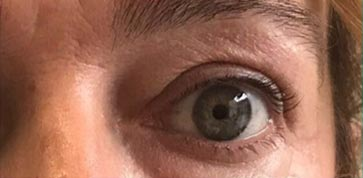 blefaroplastia-caso-2-despues